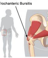 csípőízületi gyulladás és fájdalom