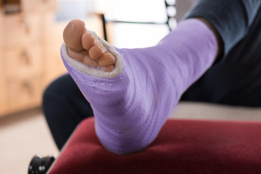 protein kezelés artrosis hogyan kezeljük a vállízület artrózisos gyógyszereit