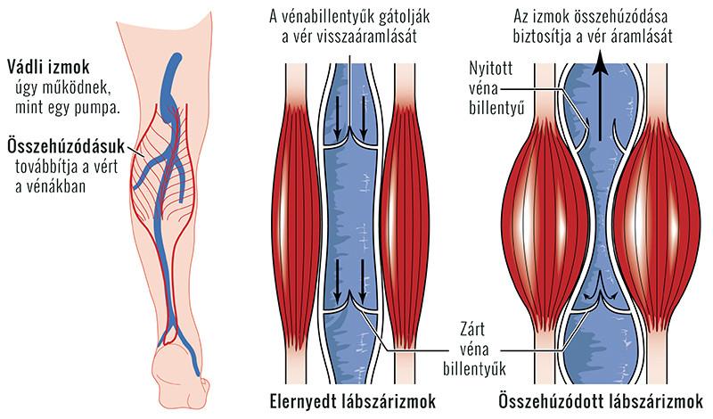 kocogás és ízületi fájdalmak mi segít a térdízület ízületi gyulladásában