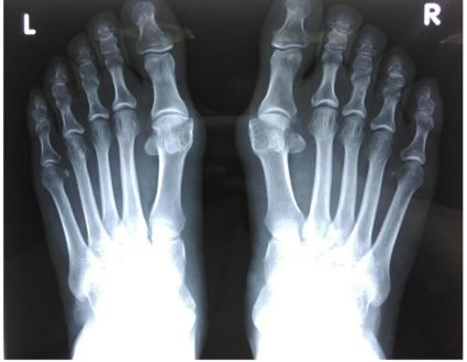 távolítsa el a nagy lábujj ízületének gyulladását epicondylitis könyökízületi kenőcs tabletták kezelése
