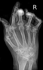 rheumatoid arthritis ízületi károsodásának képe gyógyszereket vásárolnak a térd artrózisához