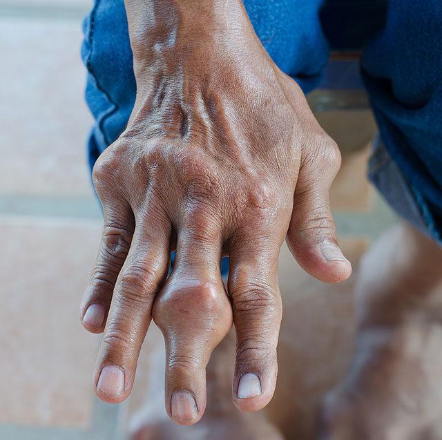 bokaízület polyarthritis tünetei és kezelése bojtorján artrózis kezelése