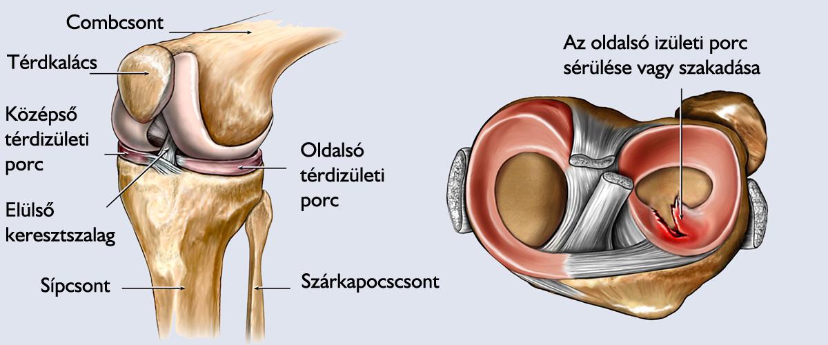 minden krém ízületi fájdalomra mellkasi kenőcs az oszteokondrozisra