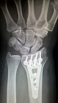 ízületi fájdalom hűtéskor üdülőhelyek arthritis arthritis kezelés