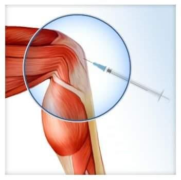 csípő dysplasia kezelési áttekintés