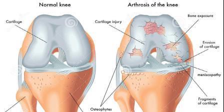 futás csípőízület artrózisával 1 fokkal a bokaízület 1. fokozatának deformáló artrózisa