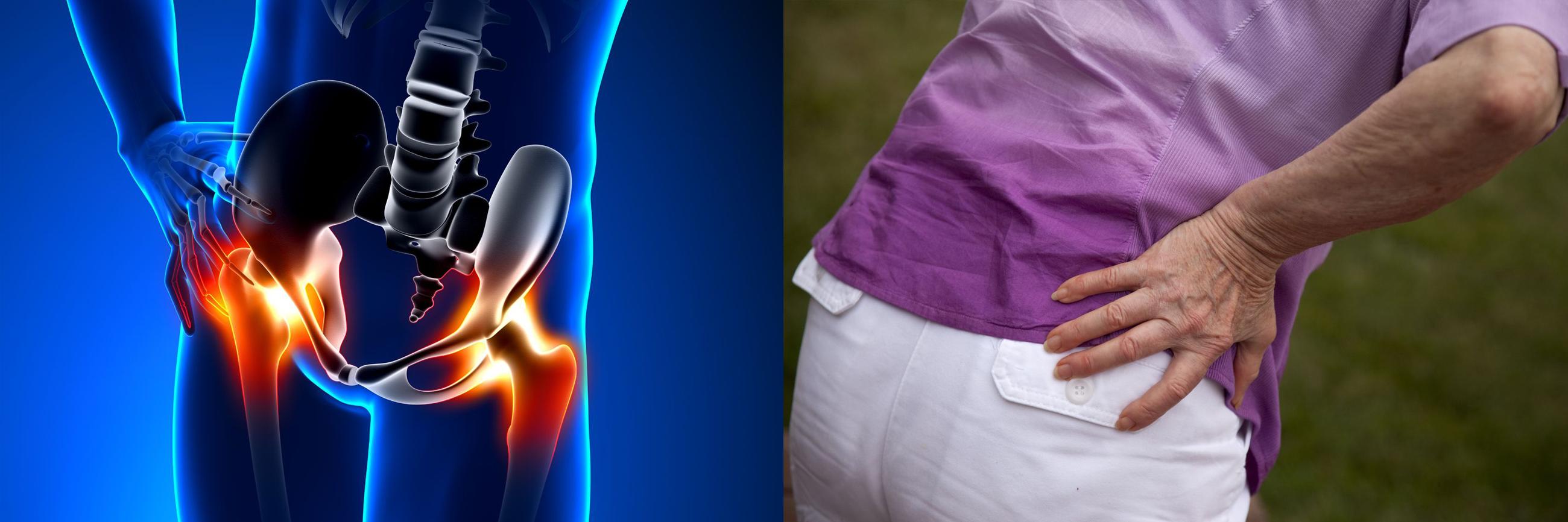 derékfájás és csípőízületek csontízületi betegségek