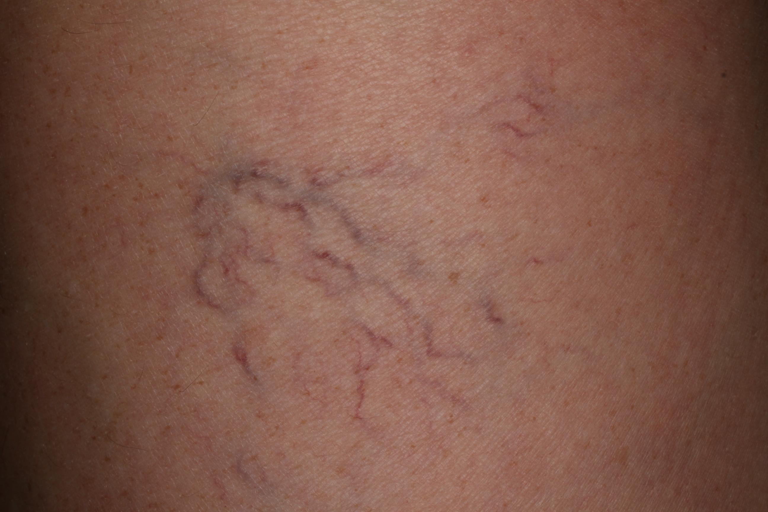 ízületi fájdalom tiroxin szedésekor