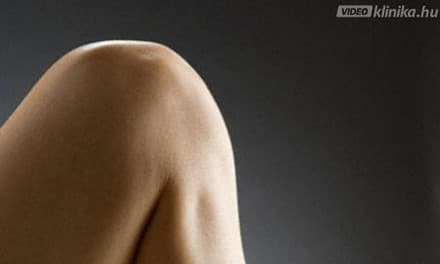 nem szteroid fájdalomcsillapító gyógyszerek az oszteokondrozisra a csípő és a combcsont károsodása