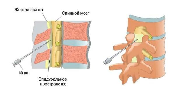 ízületi fájdalom tünetei kenőcs