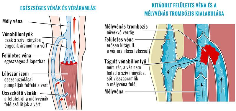 a vénák és az ízületek lábainak betegségei mi az új arthrosis kezelése