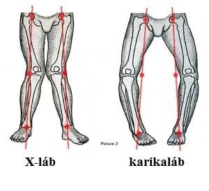 a karok és a lábak kis ízületeinek fájdalma ízületi és izomfájdalmak gyógyszerei