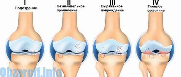 a lábak ízületeinek betegségeinek kezelése
