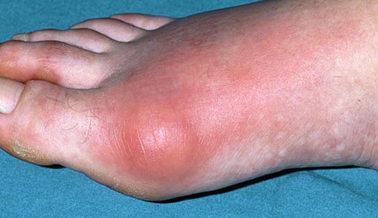 vörös és fájó ízület a lábon ízületi fájdalom a vírussal