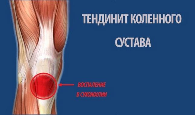 a térdízület belső ligamentumának törése nézni az ízületi kezelést