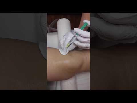 váll- és térdízületek ízületi fájdalom és gomba