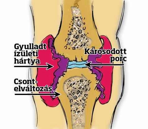 térdízület ízületi gyulladása és ízületi gyulladása
