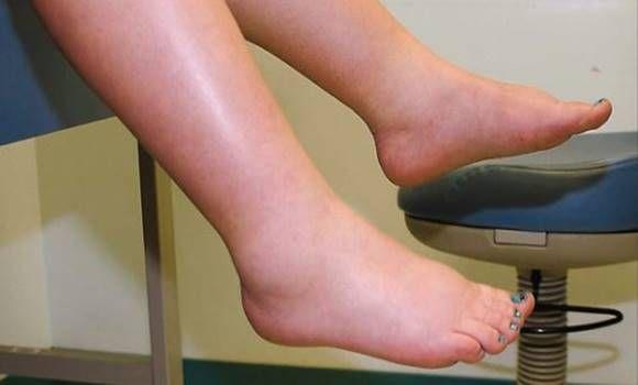 mi segít az ízületi betegségben