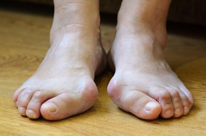 Mit árul el önről a lába? • Megelőzés • Egészség • Reader's Digest