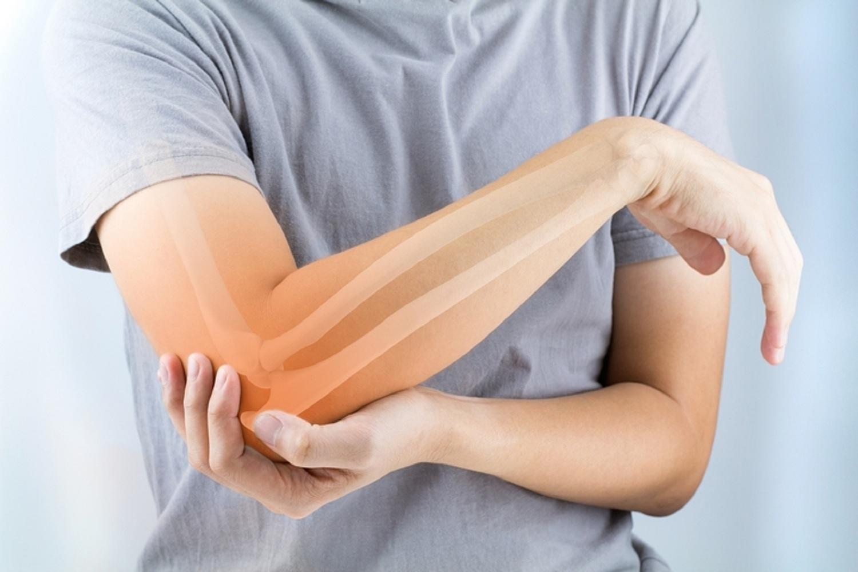 térdízület készítmények polyarthritis