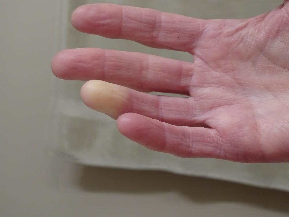 az ujjak falának ízületi kezelése