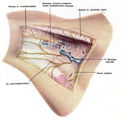 a vállízület supraspinatus izomjának inakárosodása