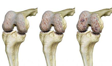 epicondylitis medialis könyökízület tünetei és kezelése térdfájdalom van ennek az ízületnek