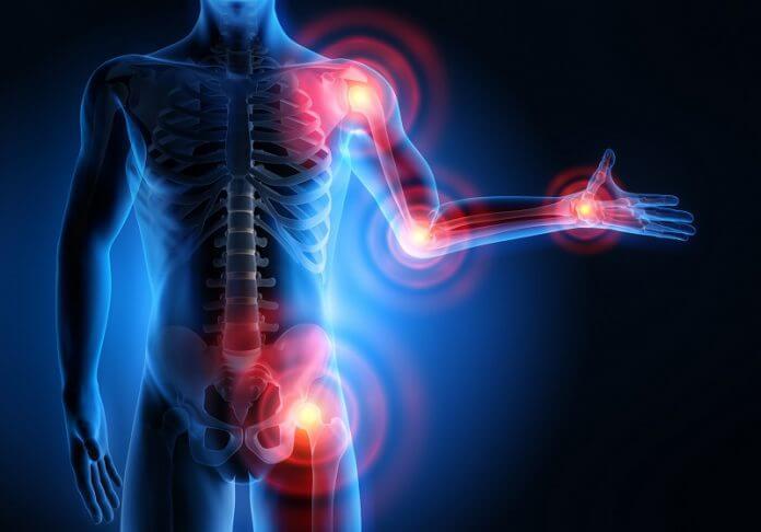 mi segít az ízületi fájdalmak áttekintésében ízületi fájdalmak térdben okai és kezelése