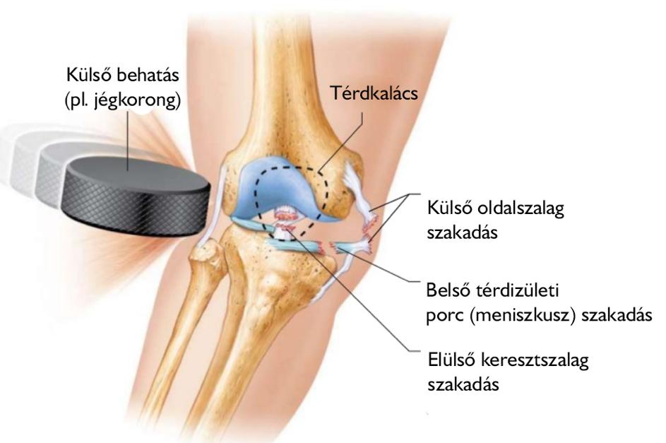 ízületi fájdalommal, milyen injekciókat térdízületi fájdalom járás közben