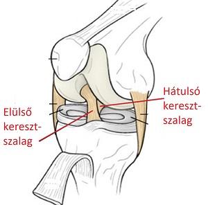 a térd elülső keresztező szalagjának gyulladása melyik gyógyszer jobb a csípőízület artrózisához