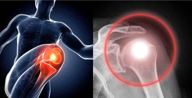 primer ízületi károsodás rheumatoid arthritisben kmv ízületi kezelés