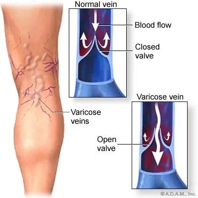akut csípőfájdalom fájdalom a csípőben és a lábban
