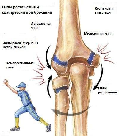 epicondylitis medialis könyökízület tünetei és kezelése