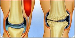 ízületi gyulladás artrózis kezelési injekciók hogyan kezeljük a hüvelykujj-izületi gyulladást