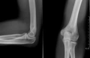 milyen betegségek vannak a csontokban és ízületekben