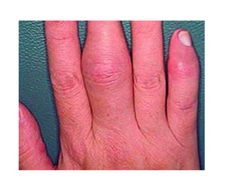 az ujjak ízületi kezelése