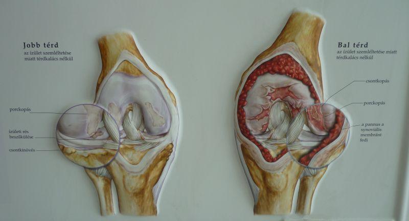 folyékony térdízület a szegycsont ízületének károsodása