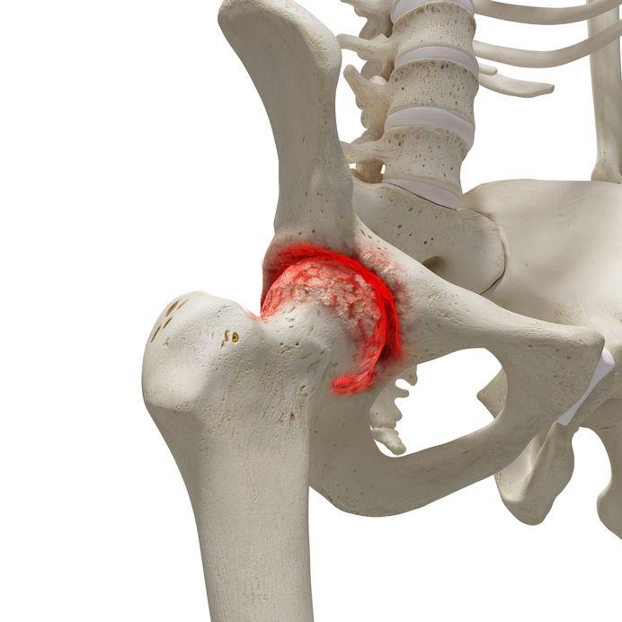 a csípőízület fizikai aktivitásának fájdalma boka sérülések artrózishoz vezetnek