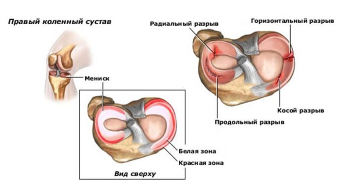 a vállízület forgó mandzsettájának kezelése gyógyszer ragasztások és ízületek glükózamin