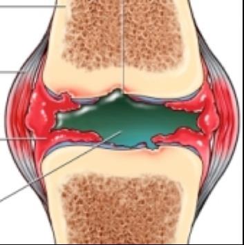 hogyan kezeljük a lábak ízületeinek gyulladását az ízületek fájdalma a nedvességtől