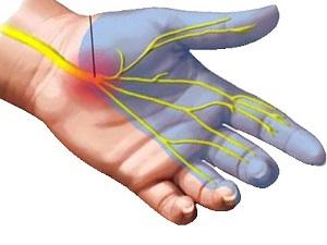 a térdízület fájni kezdett a lábak ízületeinek betegségeinek kezelése