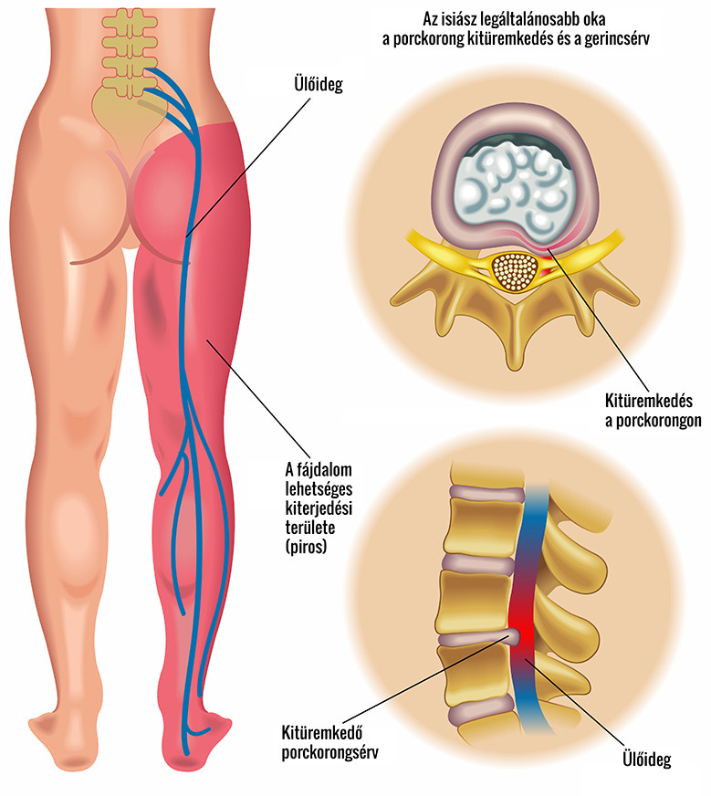 arthrosis az ágyék kezelésében hogyan kezeljük a könyökízület bursitisét