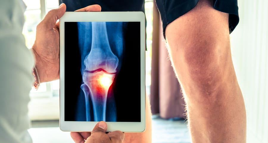ízületi fájdalom váll iruk ízületi fájdalom mozgás közben