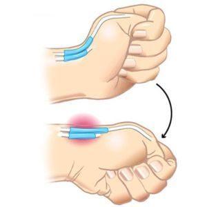 fájdalom a csípőízületben fizikai erőfeszítés után a csípőízület deformáló ízületi gyógyszere