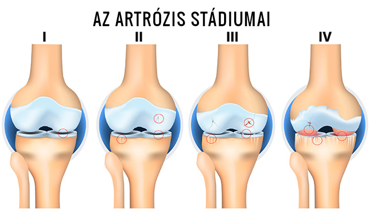 hogyan kezeli az artrózist