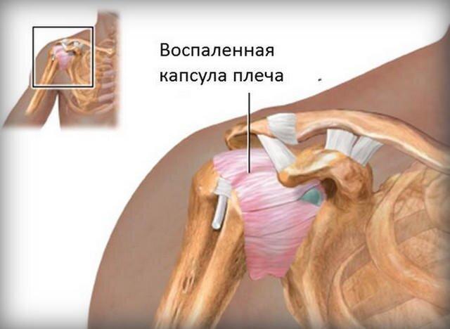 ízületi megbetegedés hírek az artrózis kezelésében