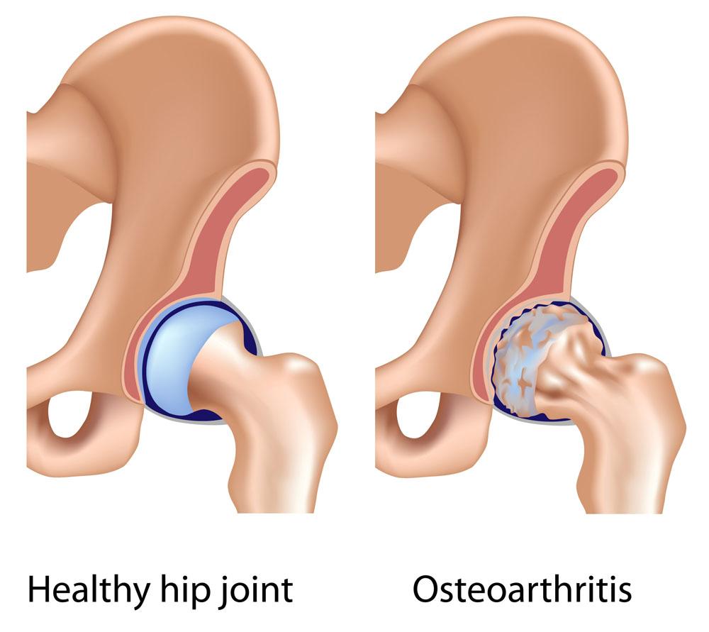 mi fáj a térdízületek artrózisával