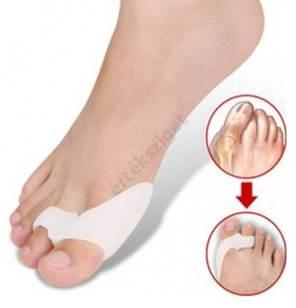 ízületi fájdalom a nagy lábujj alatt psoriasis ízületi gyulladás, aki kezeli