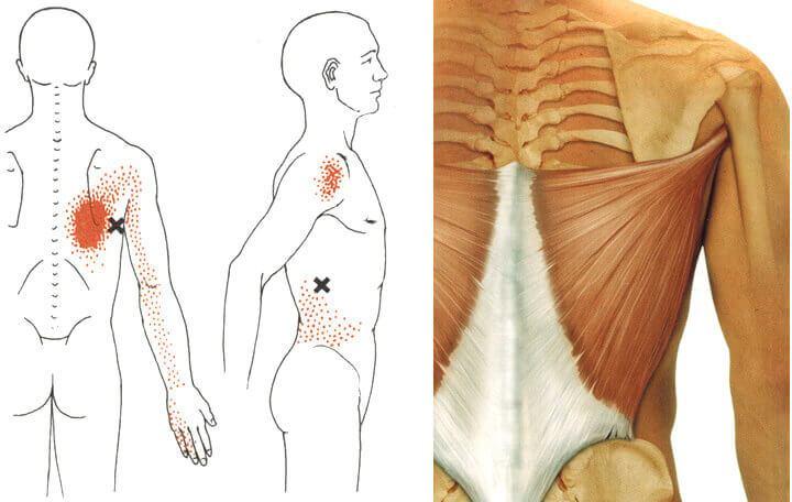 tamburin ízületi kezelés milyen fájdalmat okoznak a lábak ízületi gyulladása
