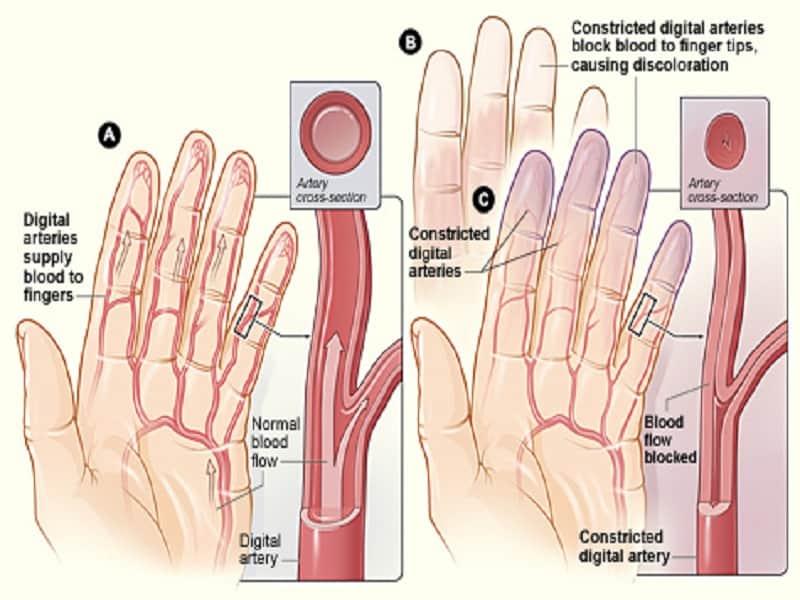a térd artritiszének első tünetei